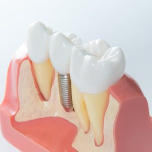 an up-close cross-sectional of a mouth mold with a dental implant between two healthy teeth