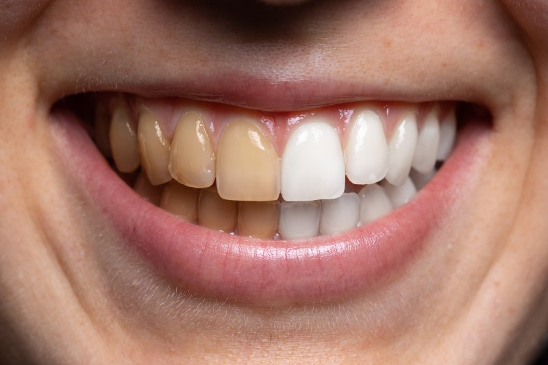 tooth stains before and after whitening